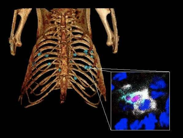 Lung cancer: Hope for increasing immunotherapy efficacy